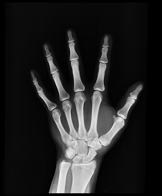 Photo of Xray of a Hand